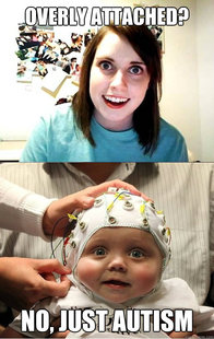 overly attached baby